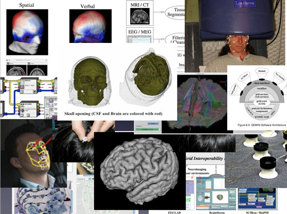 Collage of brain images.