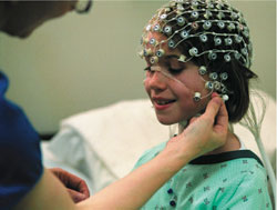 Using High Density EEG for long term monitoring