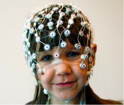 Pediatric EEG Sensor Net