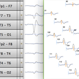 Net Station 5.3 clinical EEG software