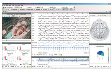 Long term EEG monitoring software