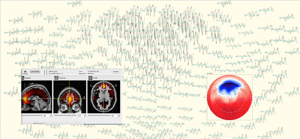 Brain waves and brain images.