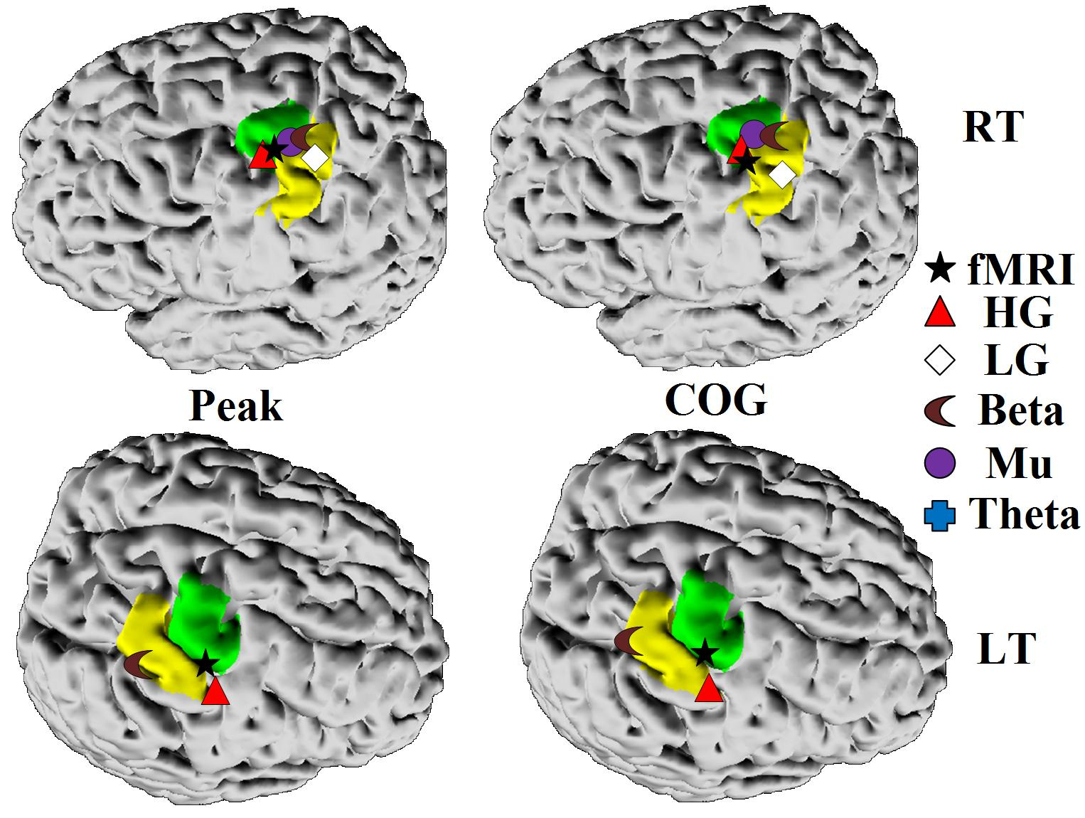 EEG and fMRI locations