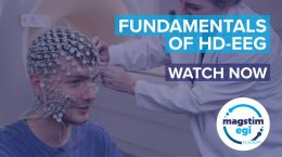Have you explored the depths of HD-EEG?